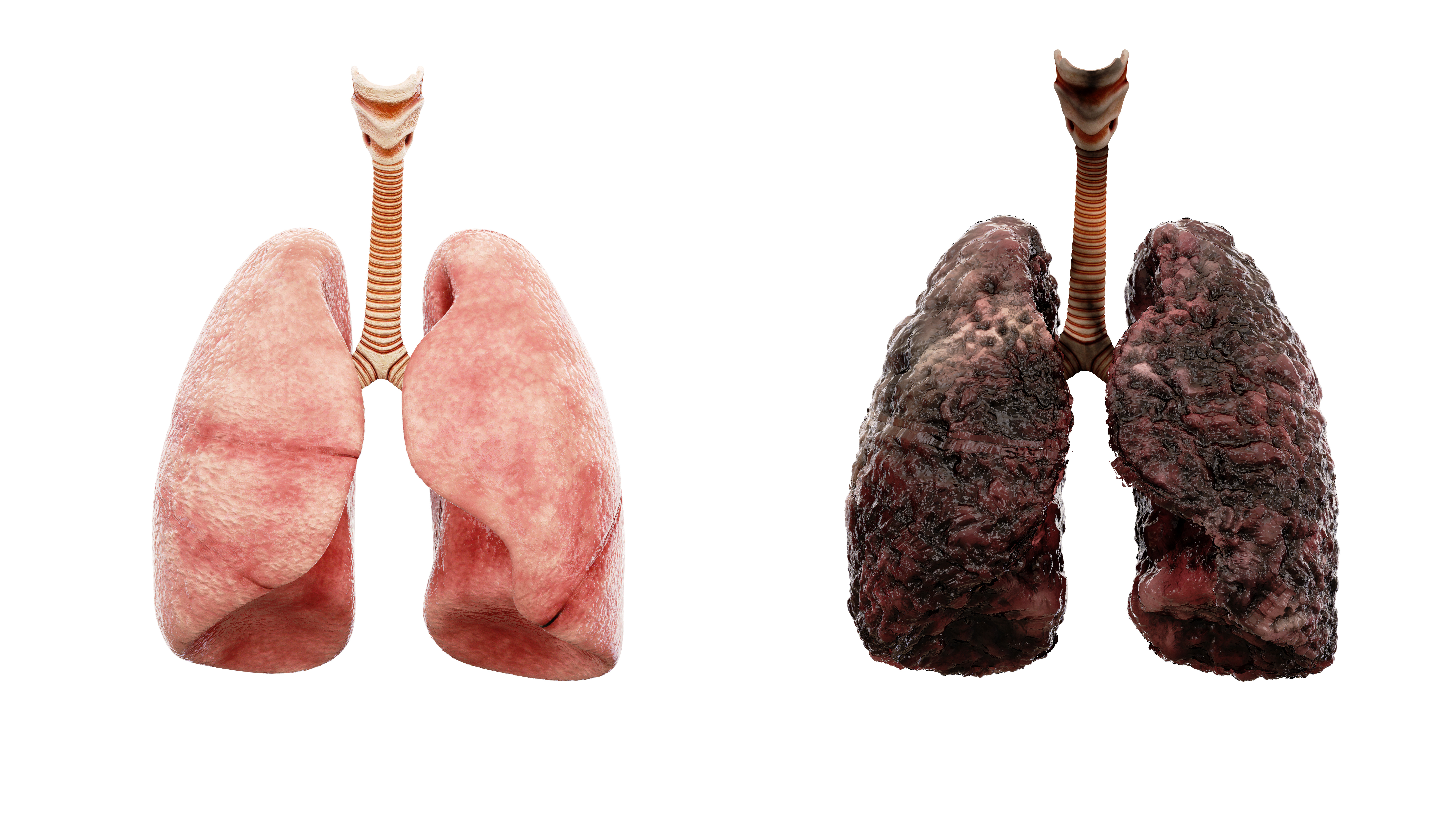 healthy lungs and disease lungs on white isolate. Autopsy medical concept. Cancer and smoking problem