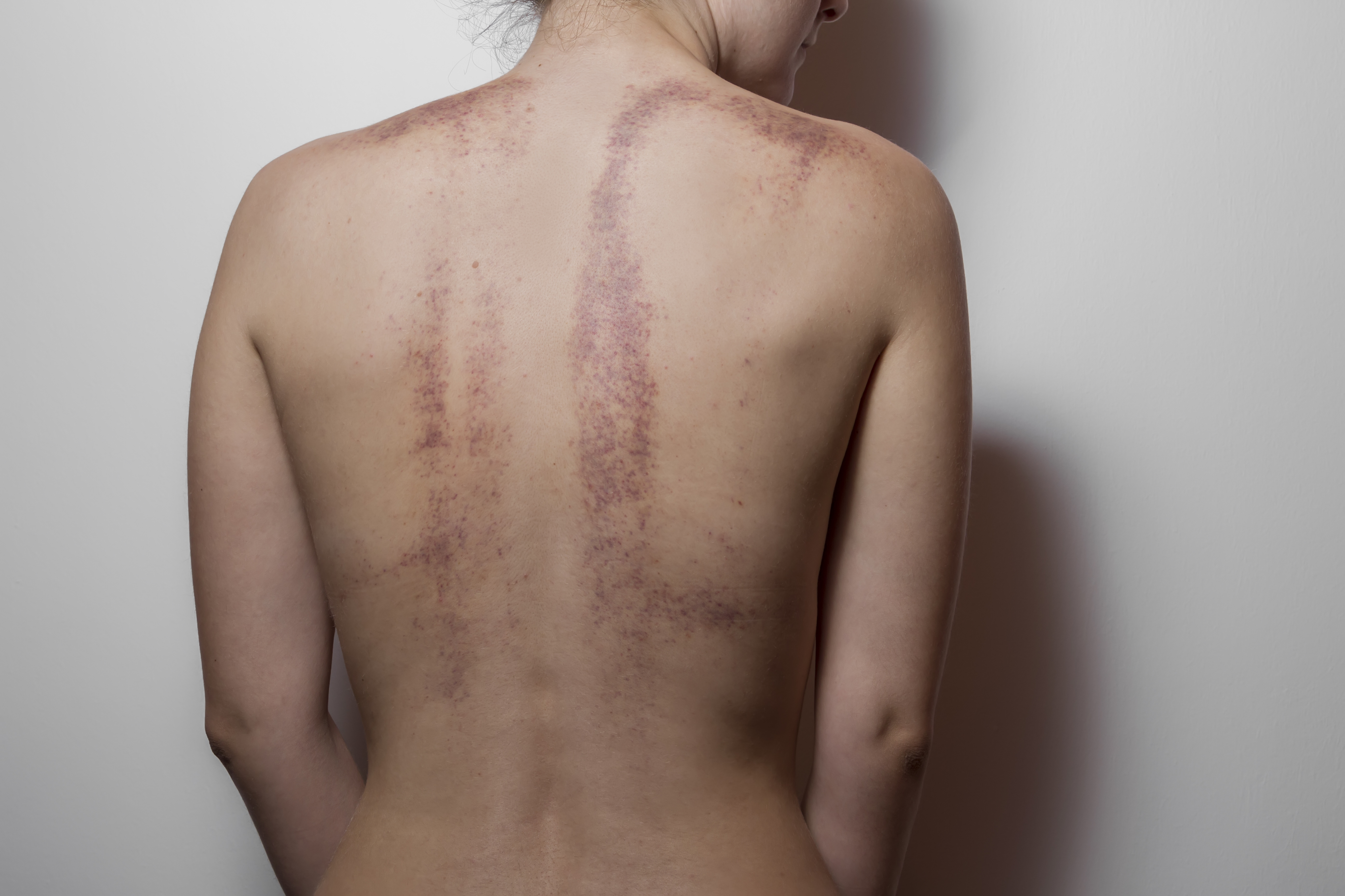 Rear view of a woman with bruises on white background. Soft focus.