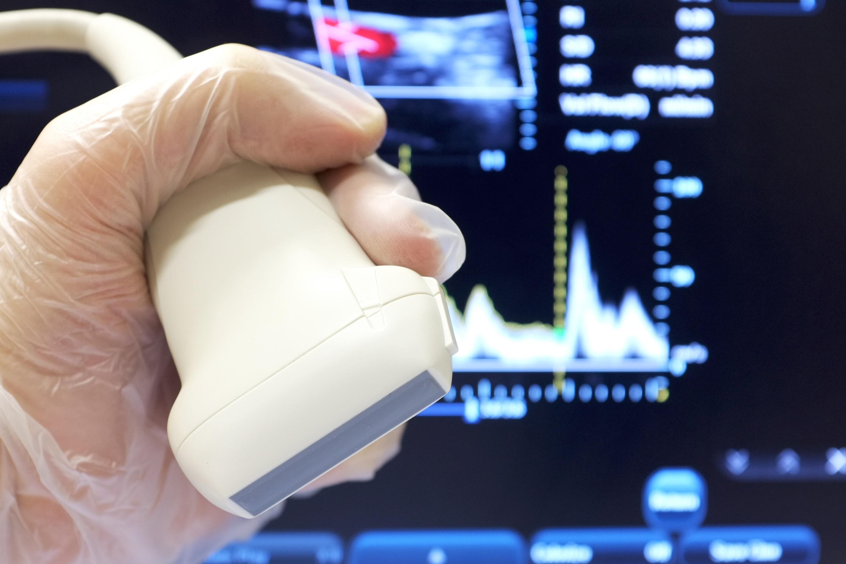Linear ultrasound probe with vascular doppler exam in background