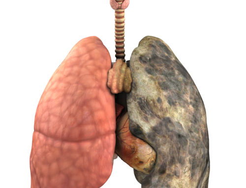 New Therapeutic Approach for Advanced Lung Disease