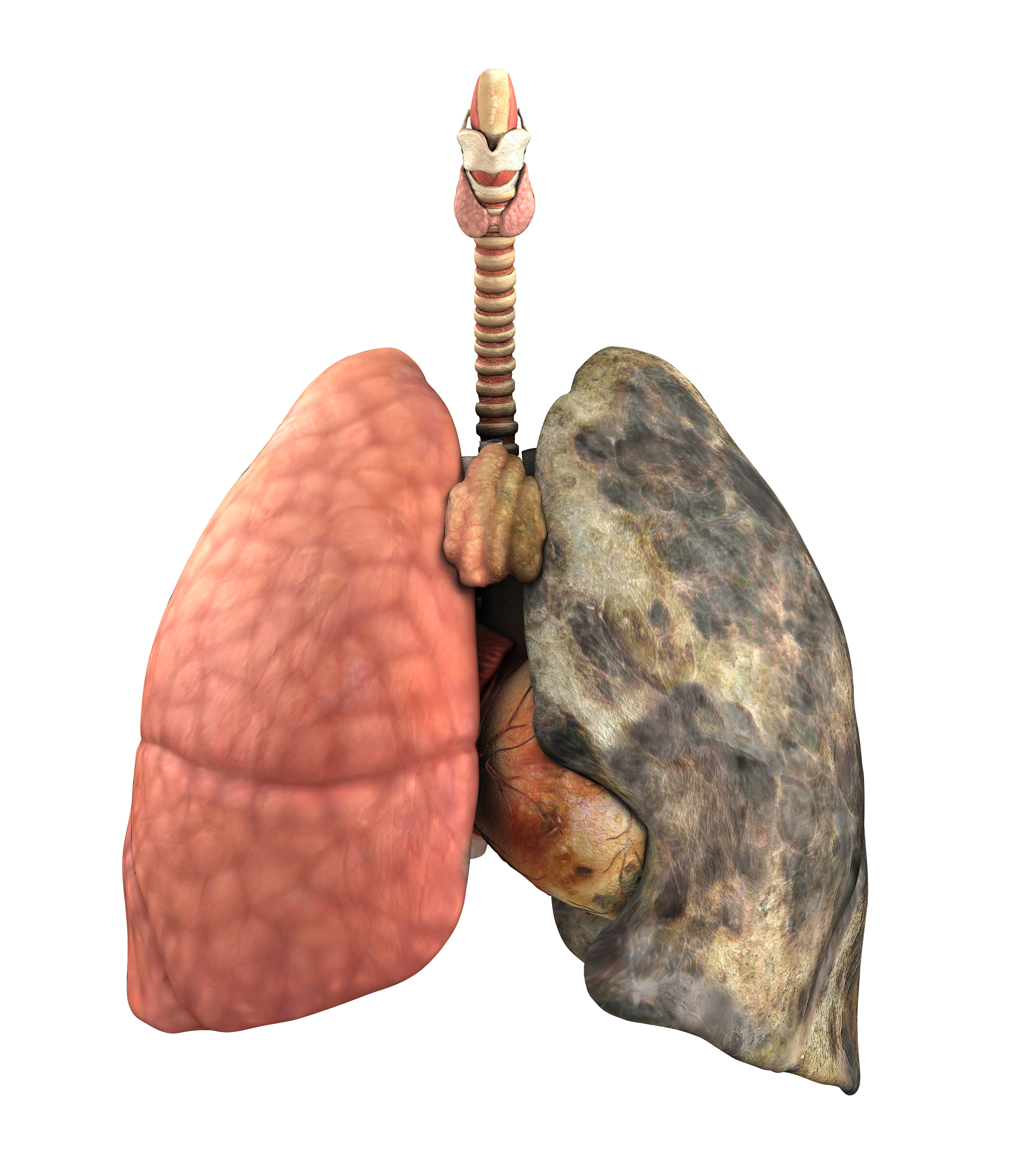A set of lungs, before and after a lifetime of smoking - 3d render.