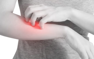 Scratching her arm in a woman isolated on white background. Clipping path on white background