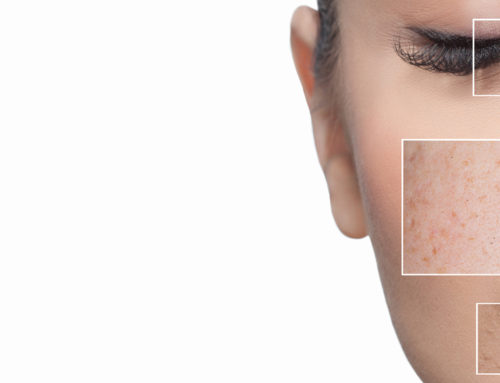 La Roche-Posay Presents the New Acne Diagnostic Tool Powered by Artificial Intelligence